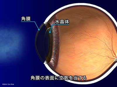 ノンコンタクト眼圧計1