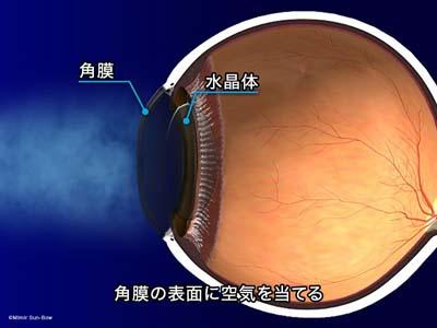 ノンコンタクト眼圧計2