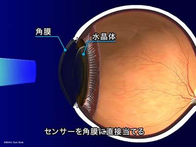 圧平眼圧計1