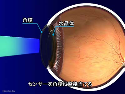 圧平眼圧計2