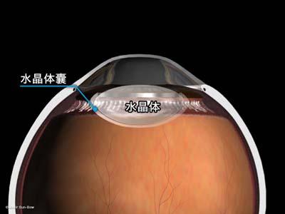 水晶体嚢外摘出術3