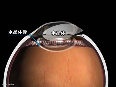 水晶体嚢外摘出術4