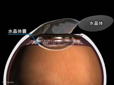 水晶体嚢外摘出術5