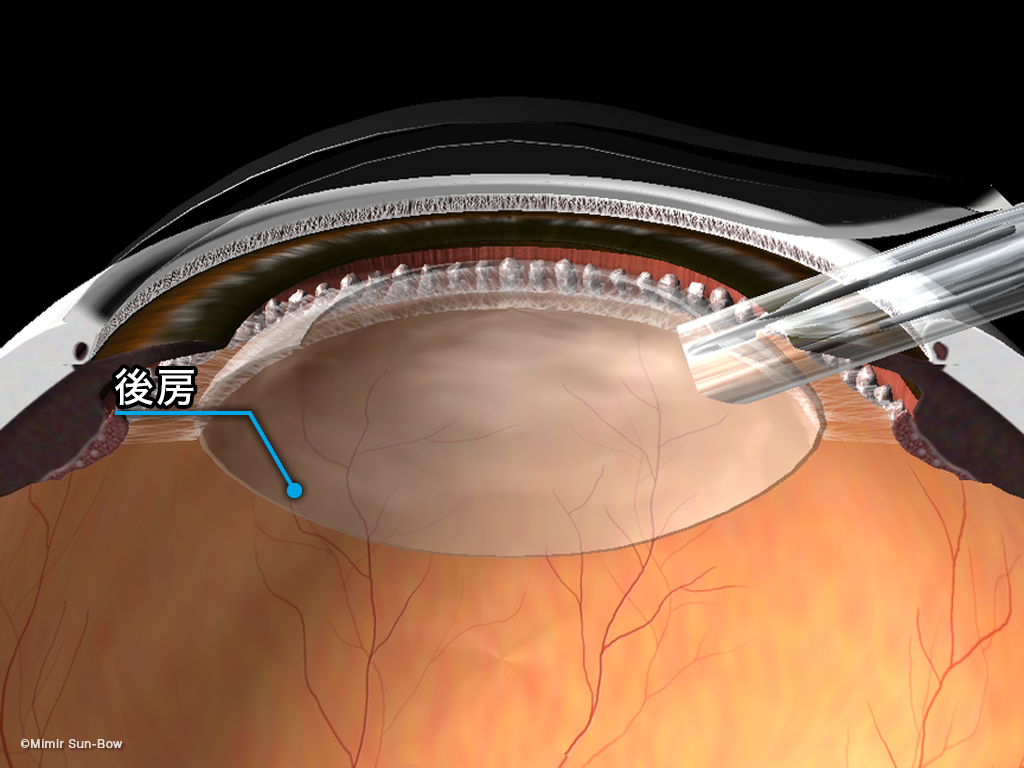 眼内レンズ挿入術の図