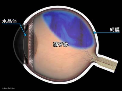 網膜剥離2