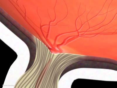 眼圧上昇と視神経乳頭1