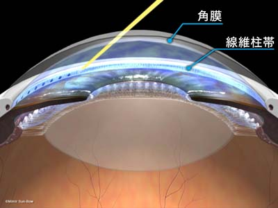レーザー線維柱帯形成術1