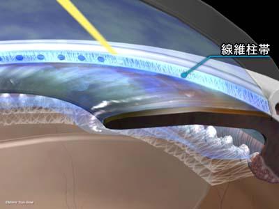 レーザー線維柱帯形成術2