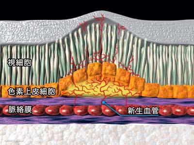 硝子体注射5
