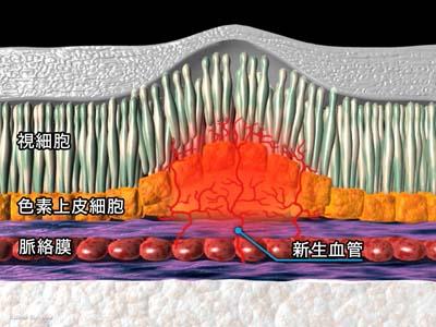 PDT(光線力学療法)1