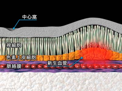 レーザー光凝固療法1
