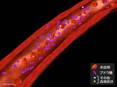 大血管障害2