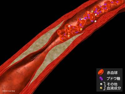 大血管障害4