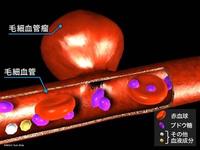 毛細血管瘤