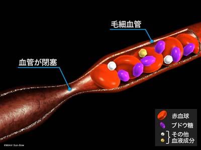 毛細血管/閉塞と出血1