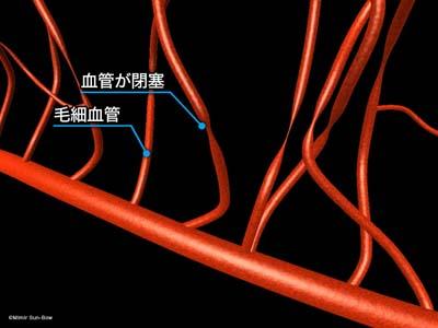 毛細血管/変形・瘤・出血1