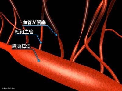 毛細血管/変形・瘤・出血2