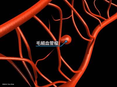 毛細血管/変形・瘤・出血3