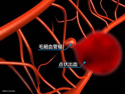 毛細血管/変形・瘤・出血4