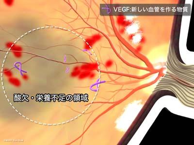 VEGFの発生