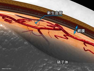 新生血管と硝子体1