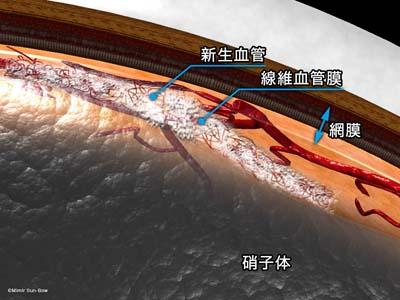 線維血管膜と網膜前出血1