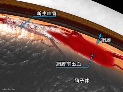 線維血管膜と網膜前出血2