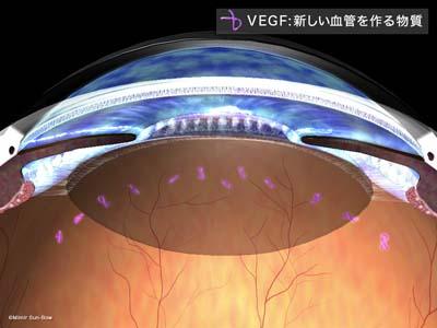 血管新生緑内障1