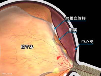 牽引性網膜剥離3