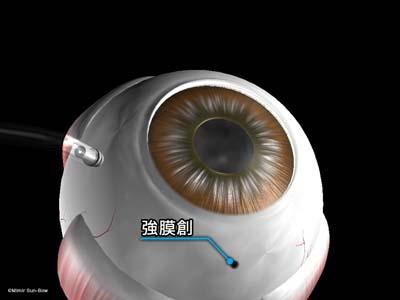 強膜創血管新生1
