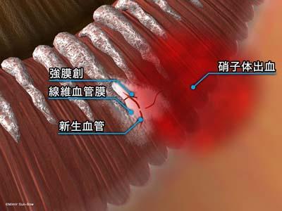 強膜創血管新生5