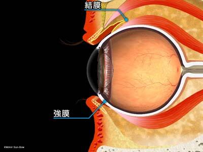 結膜下注射1