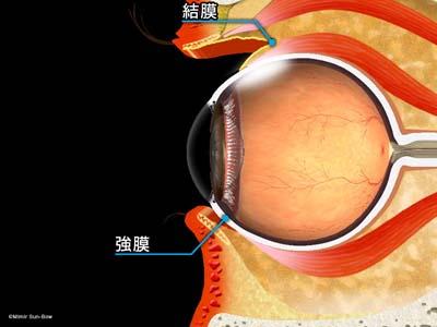 結膜下注射3