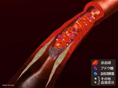血栓溶解薬2