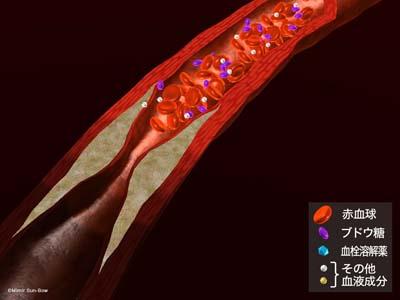 血管拡張薬1