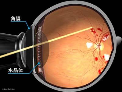 汎網膜光凝固術/断面1