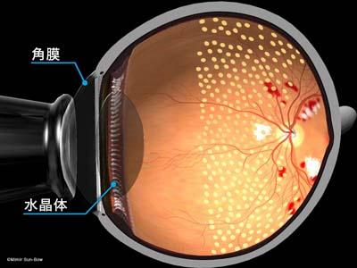 汎網膜光凝固術/断面3