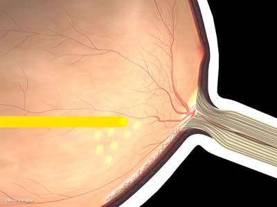 新生血管の再発1