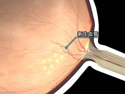 新生血管の再発2