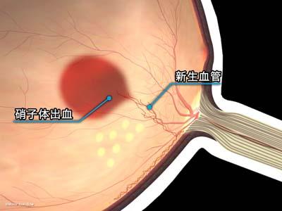 新生血管の再発3