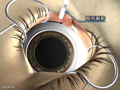 硝子体手術準備2