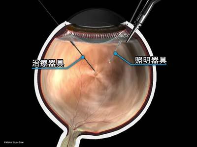硝子体手術準備6