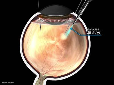 硝子体手術準備7