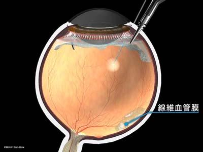 線維血管膜除去1