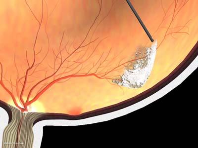 線維血管膜除去3