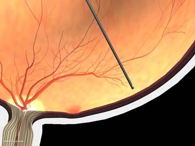 線維血管膜除去4