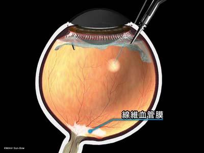 線維血管膜除去/黄斑周辺1