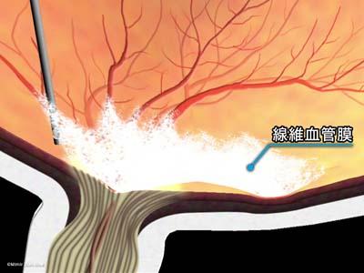 線維血管膜除去/黄斑周辺2