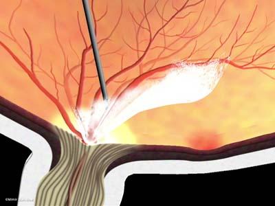 線維血管膜除去/黄斑周辺3