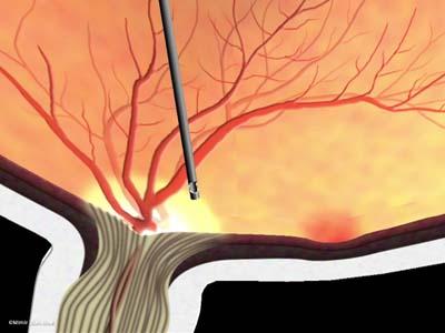 線維血管膜除去/黄斑周辺4